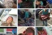 مشاهد ونماذج لا بشع صور انتهاكات حقوق الإنسان في جنوب اليمن