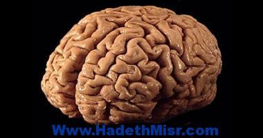 لزوجة الدم أحد أعراض نقص الحديد وزيادة خطر السكتة الدماغية