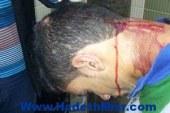 """ضحية """"إخوان جامعة المنصورة"""": زميلى أرشد عنى وقال """"ده تبع السيسى"""""""