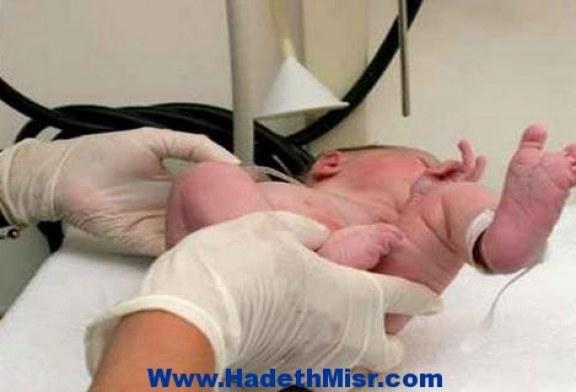 أب يقطع أنف ابنه الرضيع ويكسر جمجمته ويصيبه بنزيف في المخ احتجاجًا على بكائه