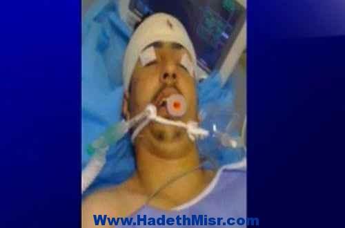 الأطباء يؤكدون ان ضحية تعذيب ليبيا مات إكلينكياً