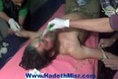 كيماوي الأسد من جديد على حي جوبر في دمشق