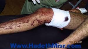 اصابة محامى بطلق نارى طائش بشارع جمال الدين الأفغاني باسيوط