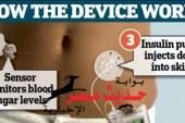بنكرياس صناعى جديد يُغنى مرضى السكر عن حقن للأنسولين
