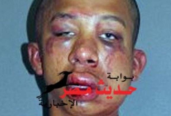 أب يضرب مغتصب ابنه ضربا مبرحا ثم يطلب له الإسعاف