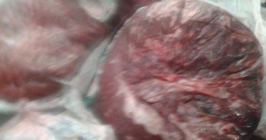 إعدام 5 آلاف كيلو أغذية فى حملة تفتيش طبى شملت 445 منشأة بالدقهلية…