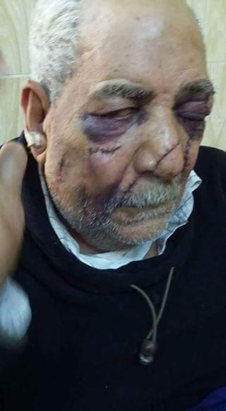 مدمن بالدقهلية يصيب مسن ب 35 طعنه في الوجه لسرقته معاشه